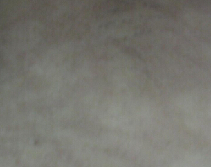 /vitiligo/bdfby/7335.html