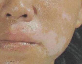 /vitiligo/bdfys/7341.html
