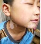 /vitiligo/bdfzl/7330.html