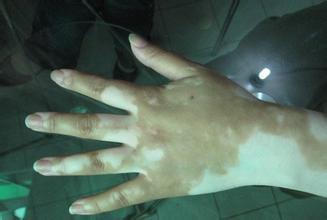 /vitiligo/bdfzl/7352.html